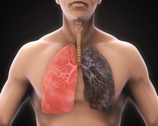 """""""Io Respiro"""", campagna di prevenzione sulle patologie respiratorie."""
